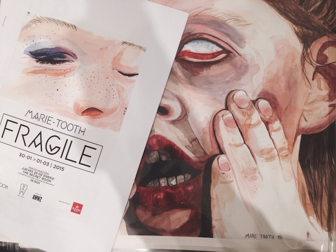 fragile marie tooth expo