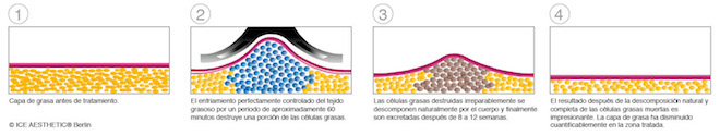 criolipolisis-diagram_ICE72dpi
