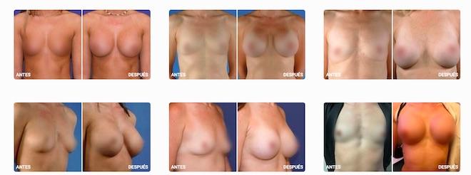 antes y despues operacion pecho